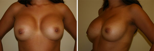 Holley-Surgical-Arts-Breast-Enhancements-Stuart-Port-St-Lucie-Florida