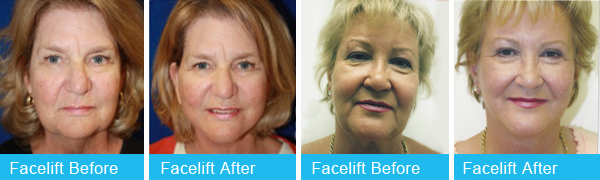 Holley-Surgical-Arts-Face-Lift-1