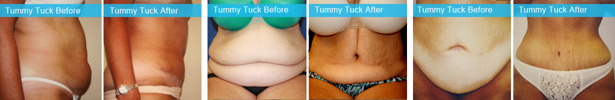 Tummy Tuck – Holley Surgical Arts