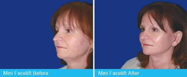 Holley-Surgical-Arts-mini-facelift-1