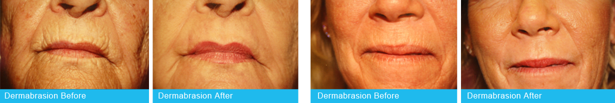 Holley-Surgical-Arts-Dermabrasion